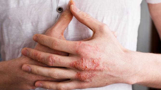 """""""Atopowe zapalenie skóry wpływa niemal na każdą dziedzinę życia"""""""